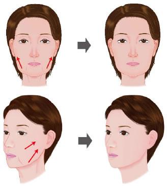 face_lift_cheek00