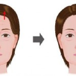 face_lift_forehead00