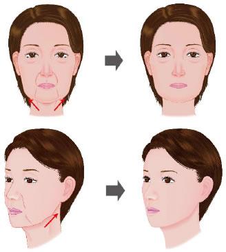 face_lift_neck00