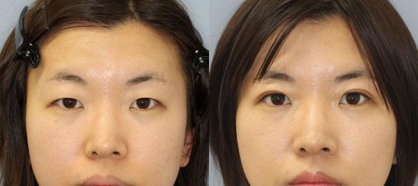 埋没重瞼術症例
