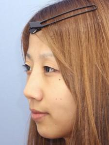 シリコンプロテーゼ隆鼻術